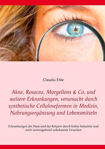 Akne, Rosacea, Morgellons & Co. und weitere Erkrankungen, verursacht durch synthetische Celluloseformen in Medizin, Nahrungsergänzung und Lebensmitteln