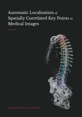 Automatic Localization of Spatially Correlated Key Points in Medical Images