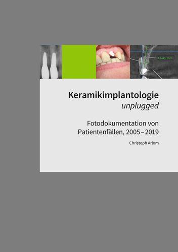 Keramikimplantologie unplugged
