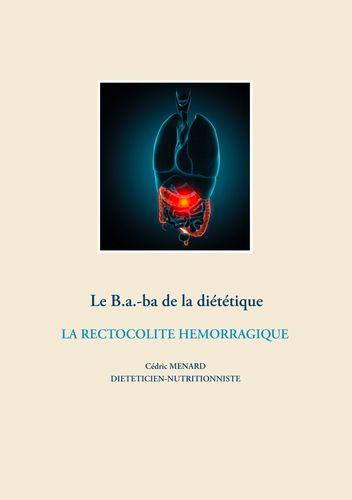 Le B.a.-ba de la diététique de la rectocolite hémorragique