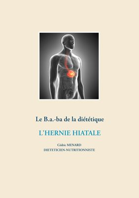 Le B.a.-ba diététique de l'hernie hiatale